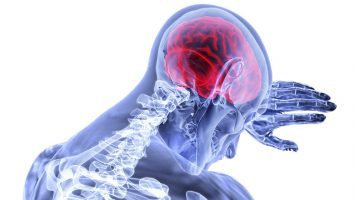Post Stroke Management Treatment in Kerala