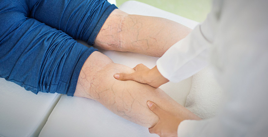 Varicose Vein Treatment in Kerala