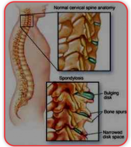 Treatment for cervical spondylosis in Ayurveda