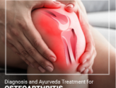 Treatment of Osteoarthritis in Ayurveda